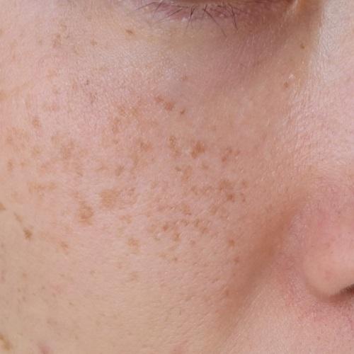 It Cosmetics(イットコスメティクス)CCクリームの使用前